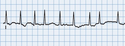 Atrial Fibrillation diagnosis & treament in NJ